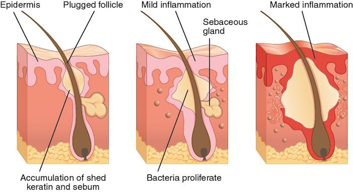 dog acne