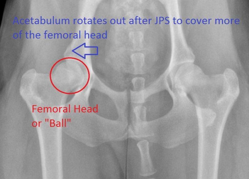 JPS surgery X-ray